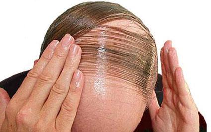 پیشگیری از ریزش مو,آموزش پیشگیری از ریزش مو