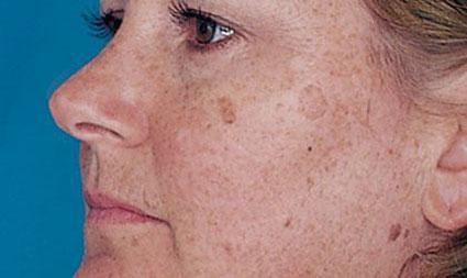 ازبین بردن لکه صورت,دلایل اصلی لکه صورت,عامل اصلی لکه صورت