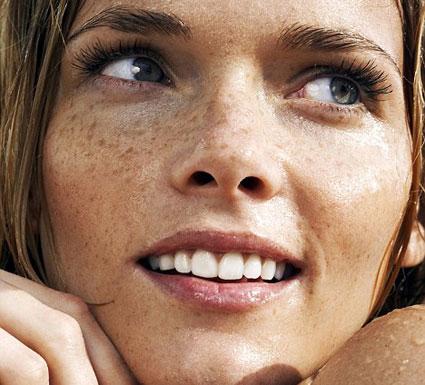 عامل اصلی لکه صورت و پوست,عامل اصلی لکه صورت و دست