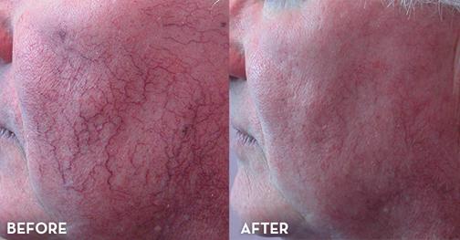 درمان طبیعی برای واریس صورت,لکه های روی صورت