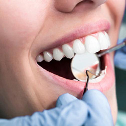 جلوگیری از پوسیدن دندان عقل,پوسیدگی دندان عقل,درمان پوسیدگی دندان عقل
