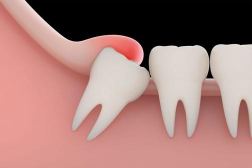 کشیدن دندان عقل چه ضررهایی دارد؟,دندان عقل چه فوایدی دارد