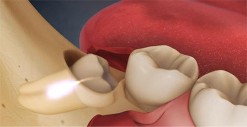 عواقب کشیدن دندان عقل,فواید کشیدن دندان عقل,آیا دندان عقل را بکشیم