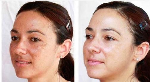 ازبین بردن لکه های روی پوست حاملگی,کاهش لکه های روی پوست زمان حاملگی