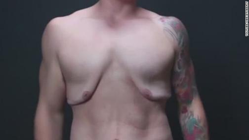 سایت پزشکی,سلامت پوست,شل شدن پوست,دلایل شل شدن پوست