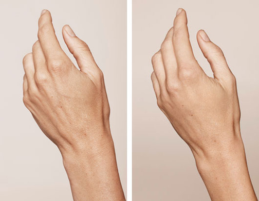 ازبین بردن لک های روی پوست دست,چگونه لک های پوست دست را ازبین ببریم؟