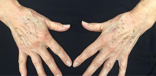 پیری پوست دست,جلوگیری از پیری پوست دست