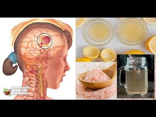 تاثیر آب لیمو روی میگرن,تاثیر آب لیمو در درمان میگرن
