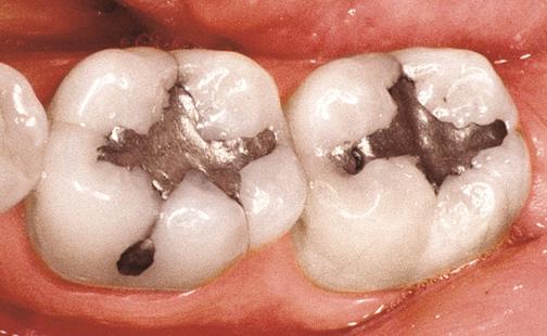 پر کردن دندان چگونه است؟,آموزش روش های پر کردن دندان