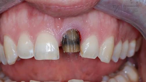 آموزش اعصاب کشی دندان,روش های اعصاب کشی دندان