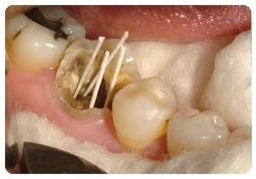 پر کردن دندان,آموزش پر کردن دندان,اعصاب کشی دندان