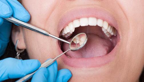 دندان کی اعصاب کشی میشود؟,پر کردن دندان چگونه است؟