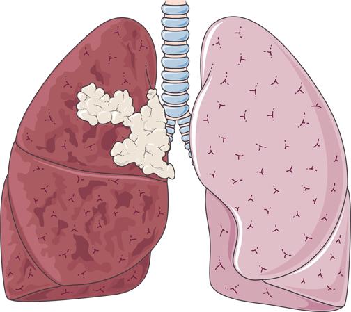 سرطان ریه چیست؟,سرطان ریه چگونه به وجود میاید
