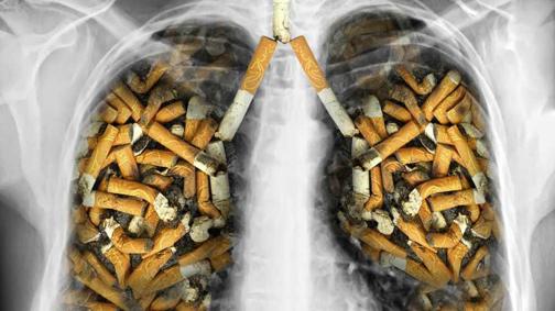 پیشگیری از سرطان ریه,درمان سرطان ریه,نشانه های سرطان ریه