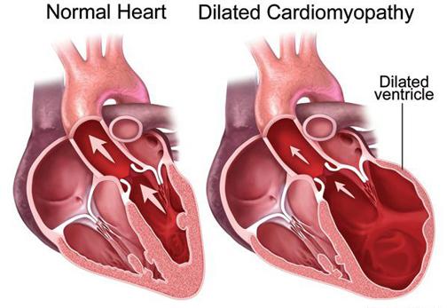 بزرگ شدن غیرعادی قلب,گشاد شدن دریچه های قلب,ازبین رفتم تعادل قلب