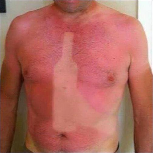 درمان قطعی برای آفتاب سوختگی,ازبین بردن پوست آفتاب سوخته