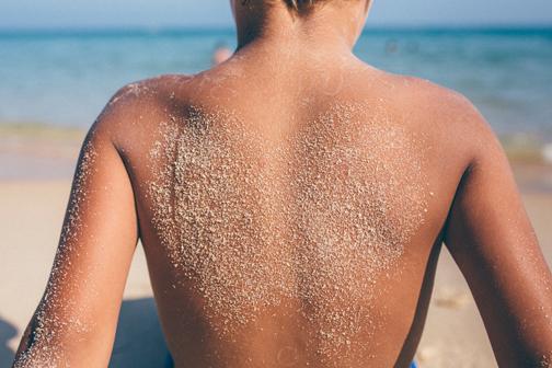 کرم های آفتاب سوختگی,بهترین درمان برای پوست آفتاب سوخته