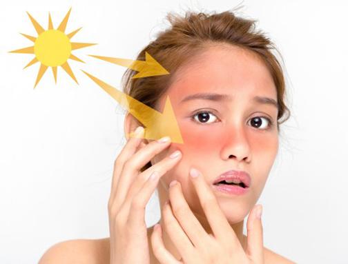 ازبین بردن آفتاب سوختگی,ترمیم پوست آفتاب سوخته