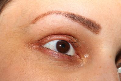 داروهای جلوگیری کننده رزیش موی مژه,ریزش مژه ها,ریزش موهای مژه,علل ریزش مژه ها,عارضه ریزش مژه