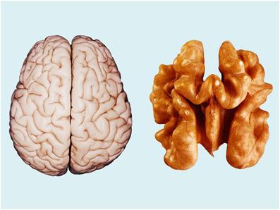 چه خوراکی هایی الزایمر را تشدید میکنند؟,چه غذاهایی موجب به وجود آمدن آلزایمر میشوند؟