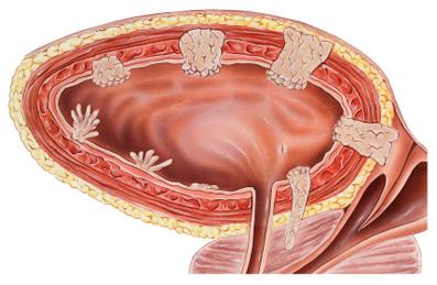 سرطان مثانه,مجرای ادراری,درمان سرطان مثانه,تومور مثانه,عوارض شیمی درمانی