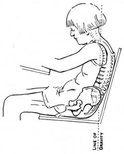 عوامل درد کمر,عوامل اصلی درد کمر,کمر درد,عوامل کمر درد,درمان کمر درد