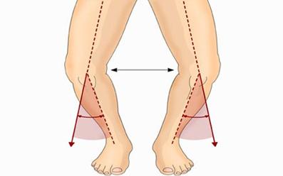 پای پرانتزی در کودکان,علت پای پرانتزی,علل پای پرانتزی,پای پرانتزی چیست,درمان پای پرانتزی کودکان