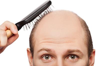 دلایل ریختن مو,کاهش ریزش موی سر,عوامل ریزش موی سر,روشی طبیعی برای کاهش ریزش مو