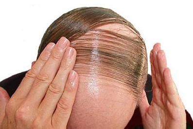 آموزش جلوگیری از ریزش مو,جلوگیری از کچل شدن,دلایل اصلی کچل شدن,کاهش کچل شدن