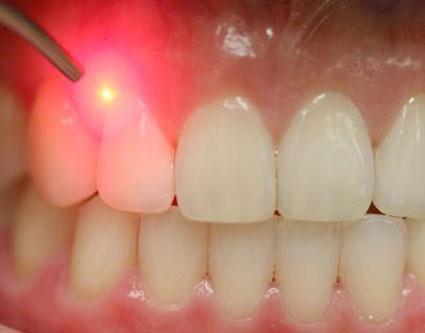 ازبین بردن چرک دندان,کاهش چرک دندان,کاهش چرک لثه